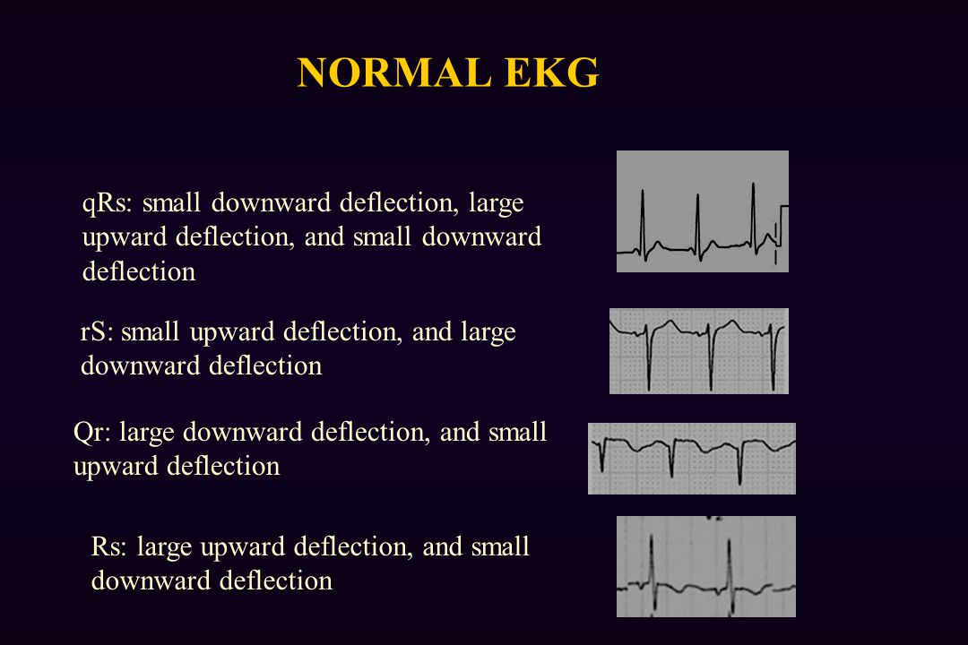 NORMAL EKG qRs: small downward deflection, large upward deflection, and small downward deflection.