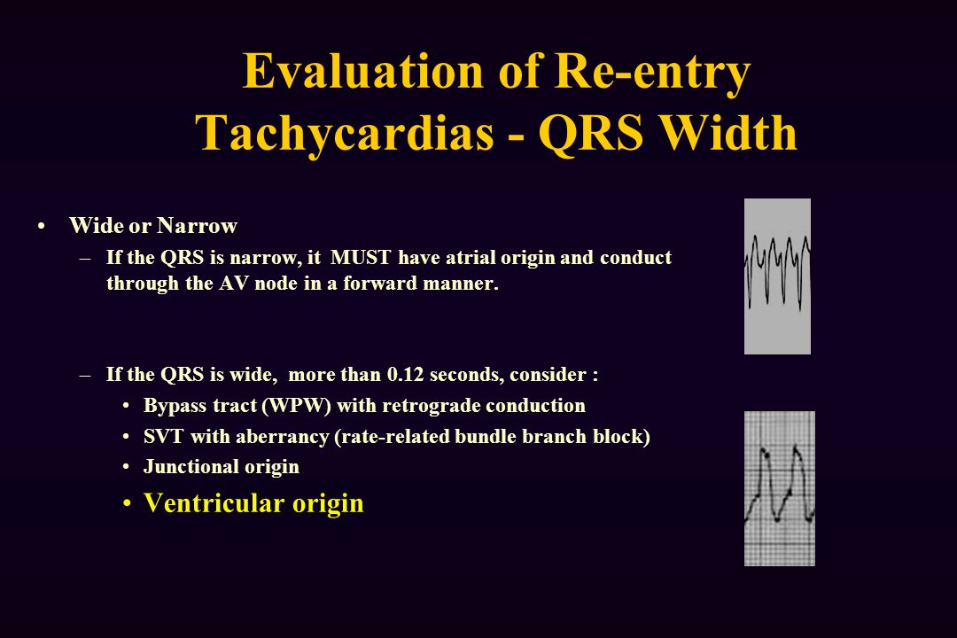 Evaluation of Re-entry Tachycardias - QRS Width