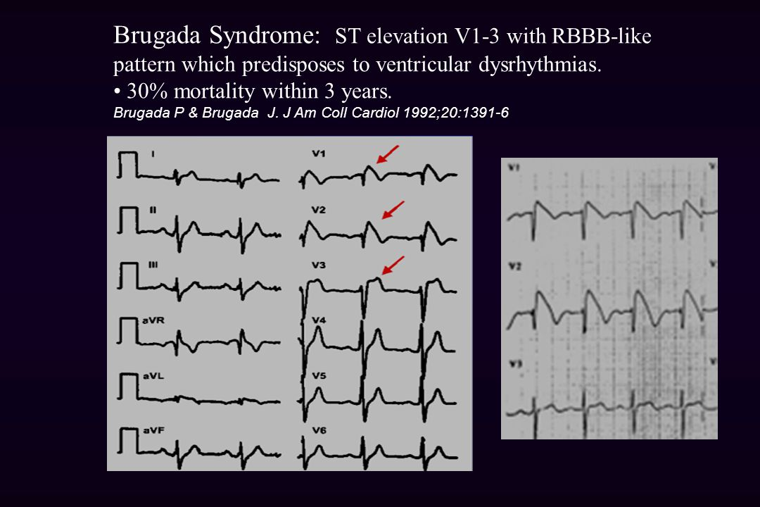 Brugada Syndrome: ST elevation V1-3 with RBBB-like pattern which predisposes to ventricular dysrhythmias.