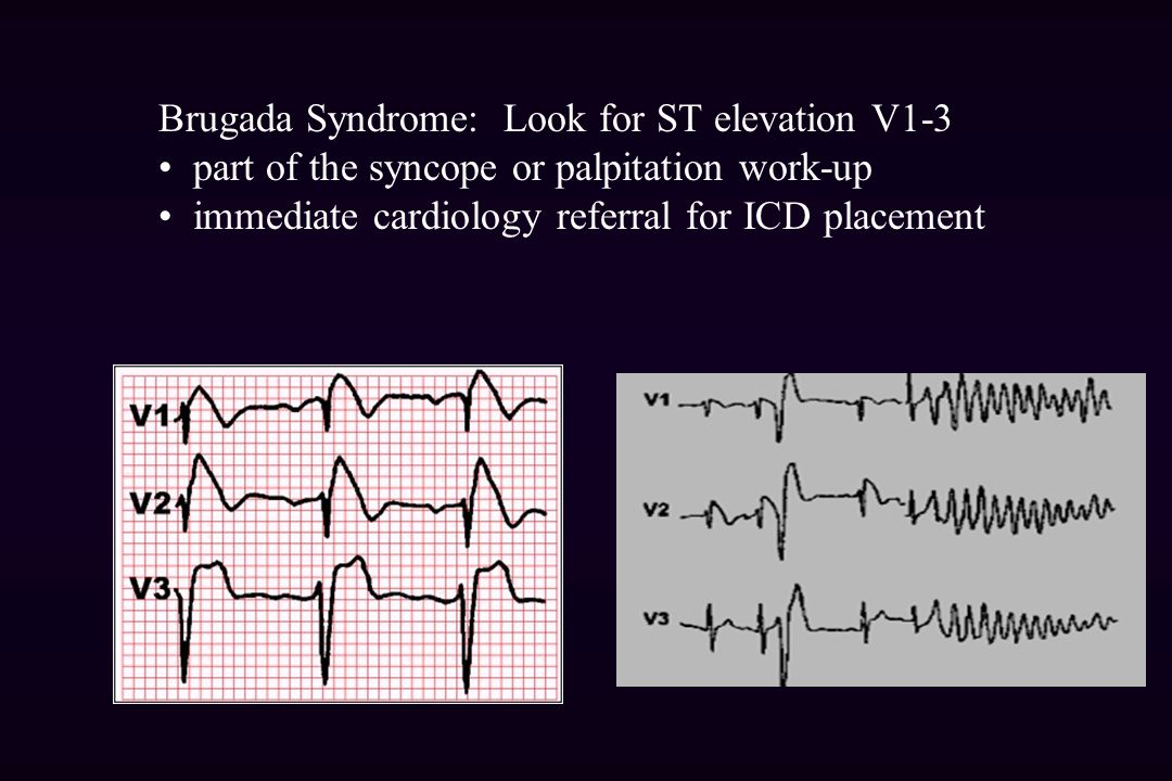 Brugada Syndrome: Look for ST elevation V1-3