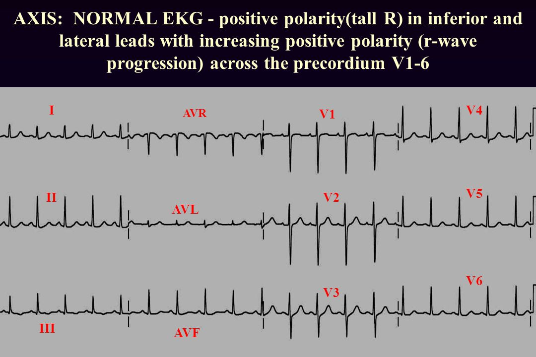 AXIS: NORMAL EKG - positive polarity(tall R) in inferior and lateral leads with increasing positive polarity (r-wave progression) across the precordium V1-6