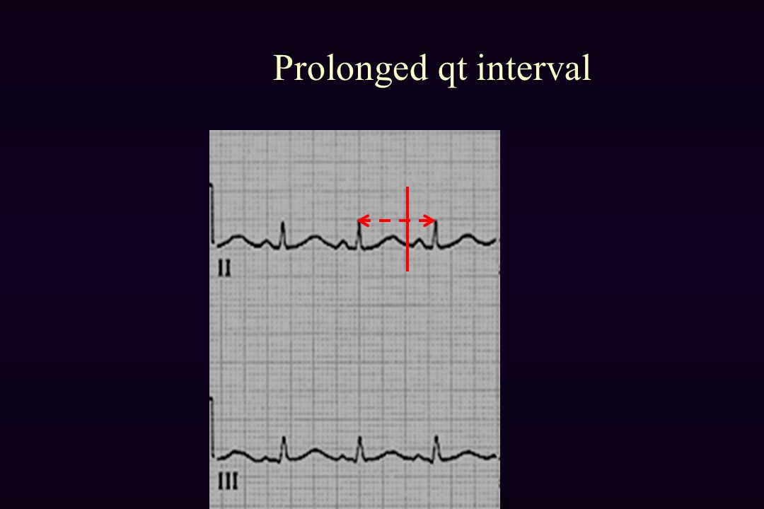 Prolonged qt interval