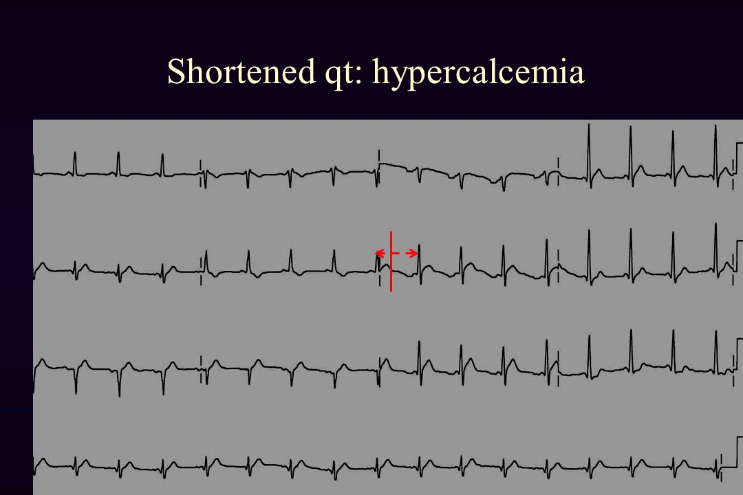 Shortened qt: hypercalcemia