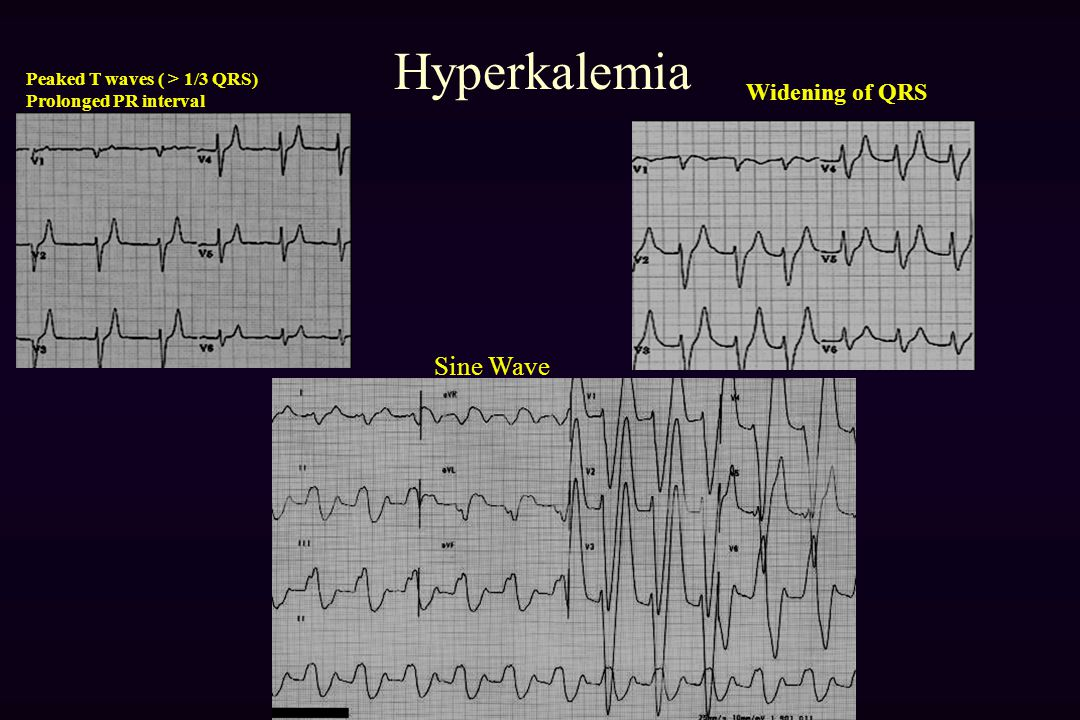 Hyperkalemia Sine Wave Widening of QRS Peaked T waves ( > 1/3 QRS)