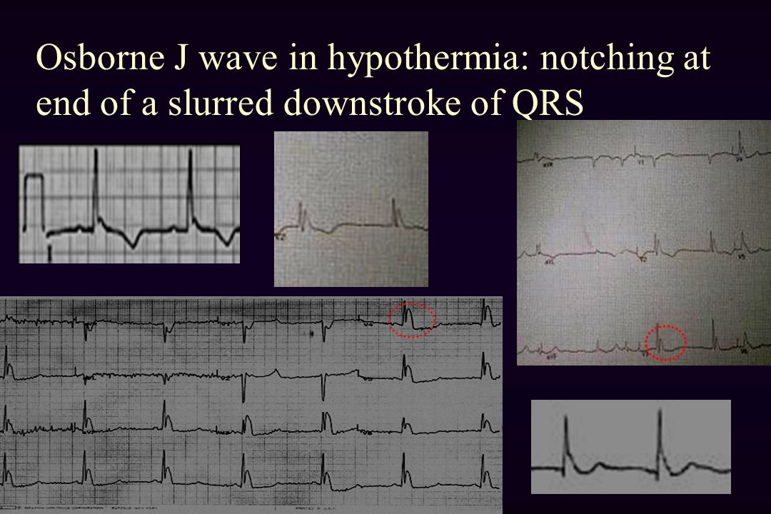 Osborne J wave in hypothermia: notching at end of a slurred downstroke of QRS