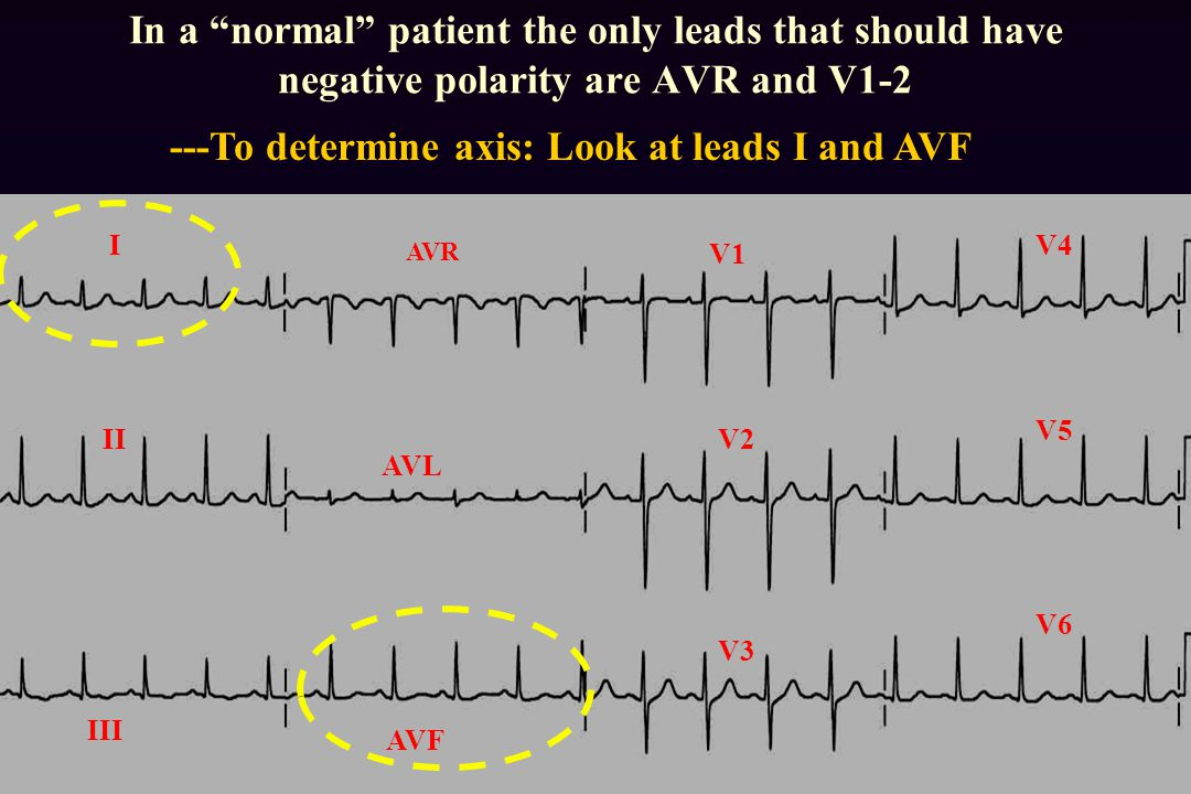 ---To determine axis: Look at leads I and AVF