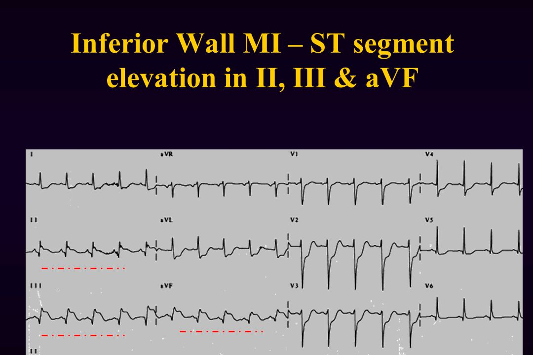 Inferior Wall MI – ST segment elevation in II, III & aVF