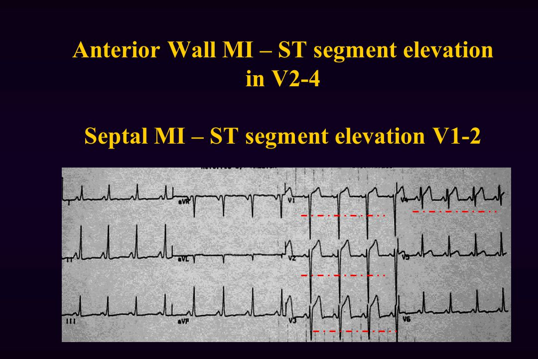 Anterior Wall MI – ST segment elevation in V2-4 Septal MI – ST segment elevation V1-2