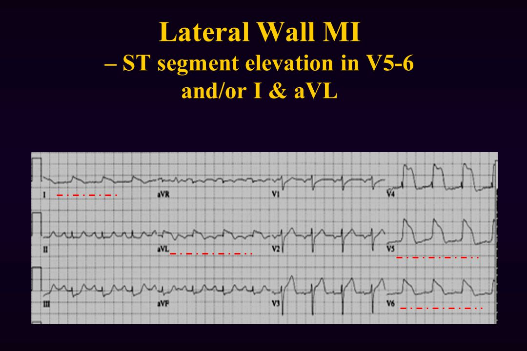 Lateral Wall MI – ST segment elevation in V5-6 and/or I & aVL