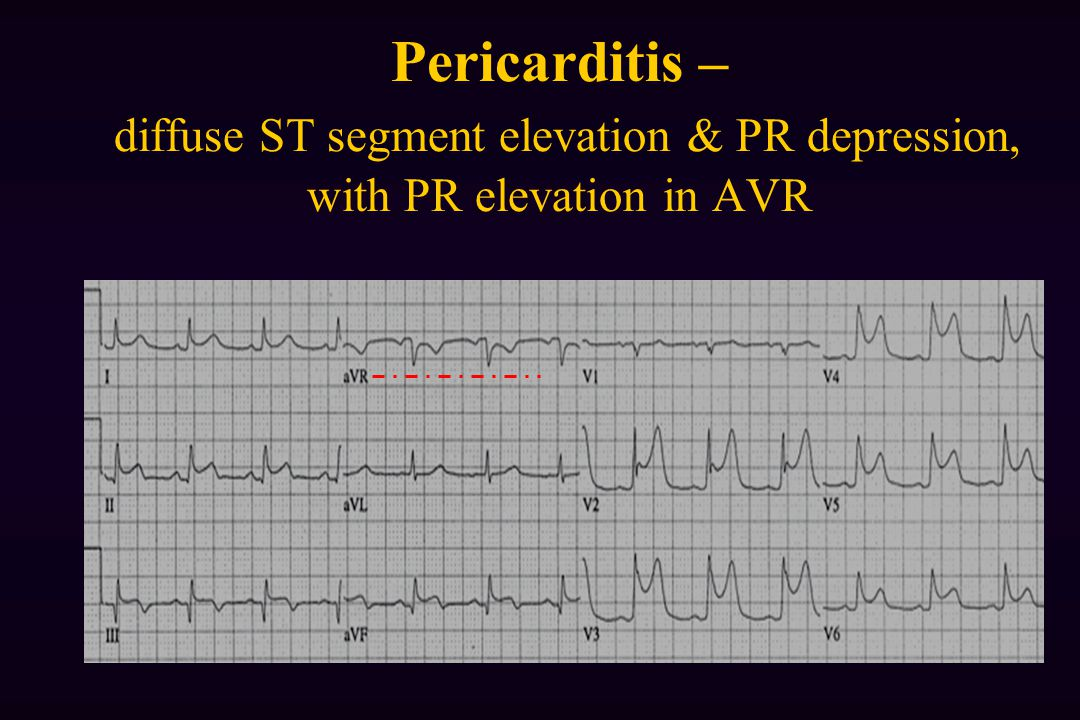 Pericarditis – diffuse ST segment elevation & PR depression, with PR elevation in AVR