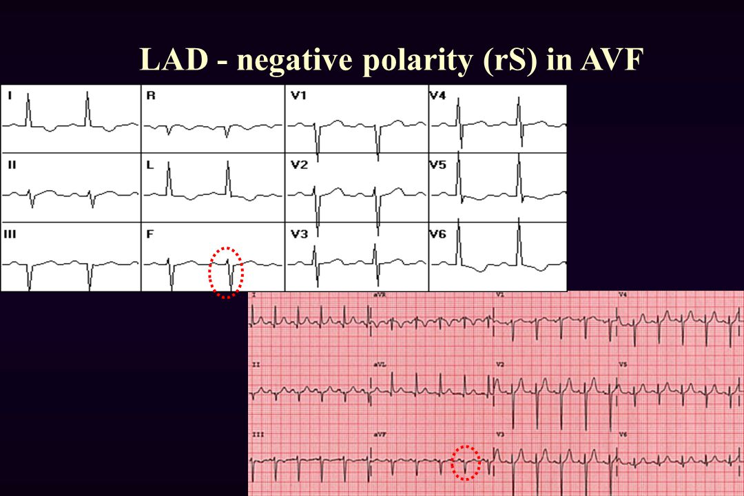 LAD - negative polarity (rS) in AVF