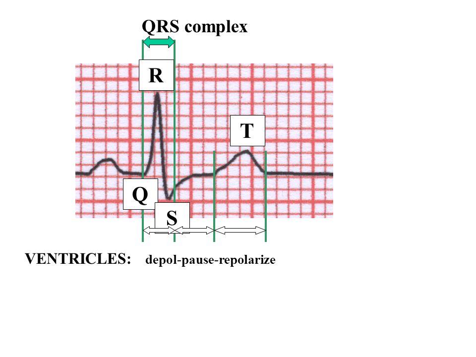 QRS complex R T Q S VENTRICLES: depol-pause-repolarize