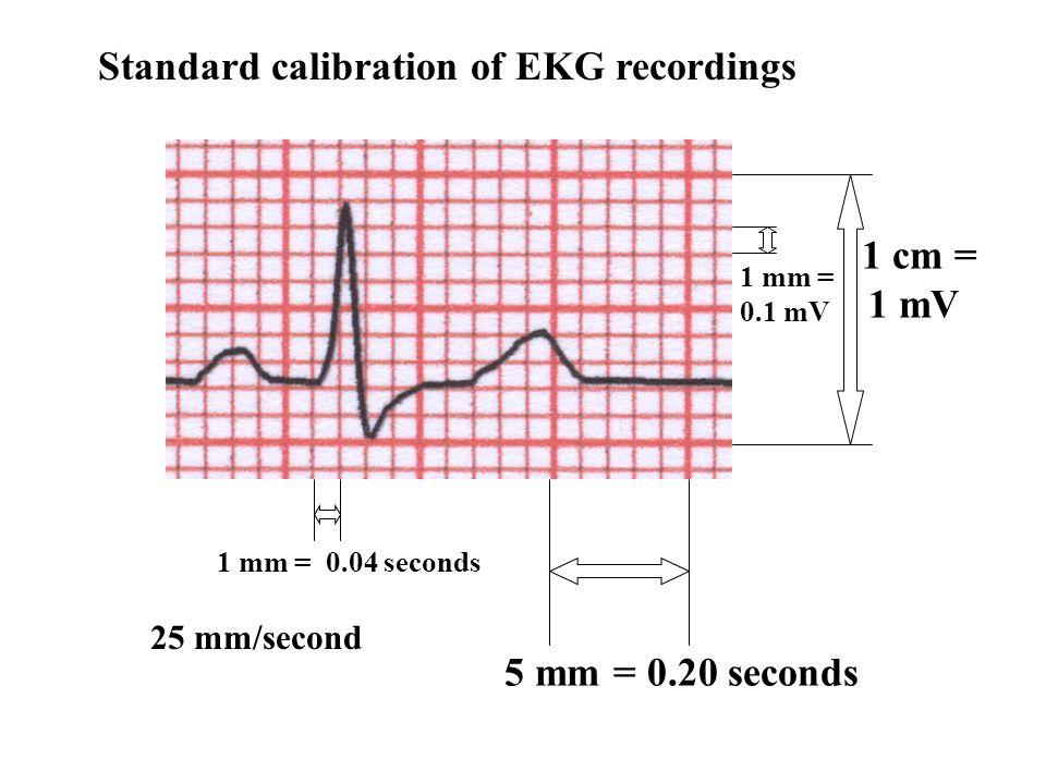 Standard calibration of EKG recordings