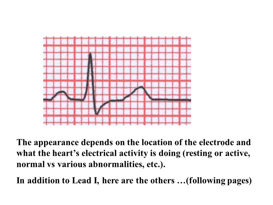 The appearance depends on the location of the electrode and what the heart's electrical activity is doing (resting or active, normal vs various abnormalities, etc.).