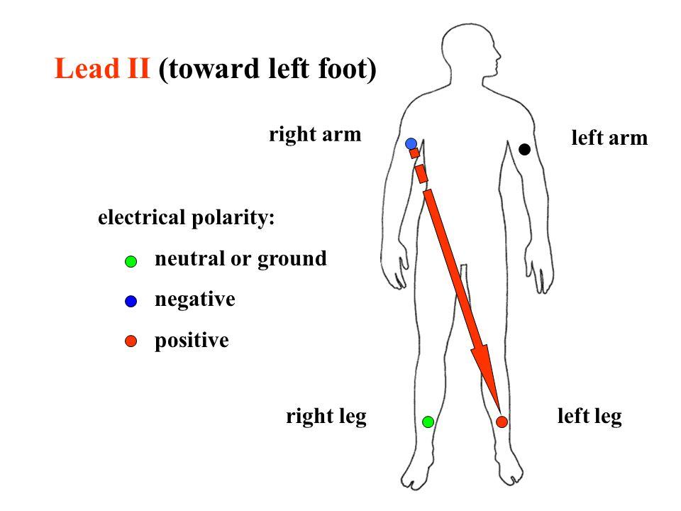 Lead II (toward left foot)