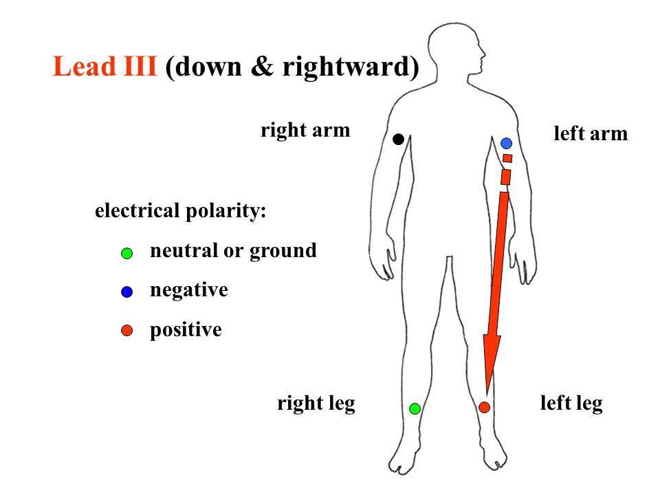 Lead III (down & rightward)