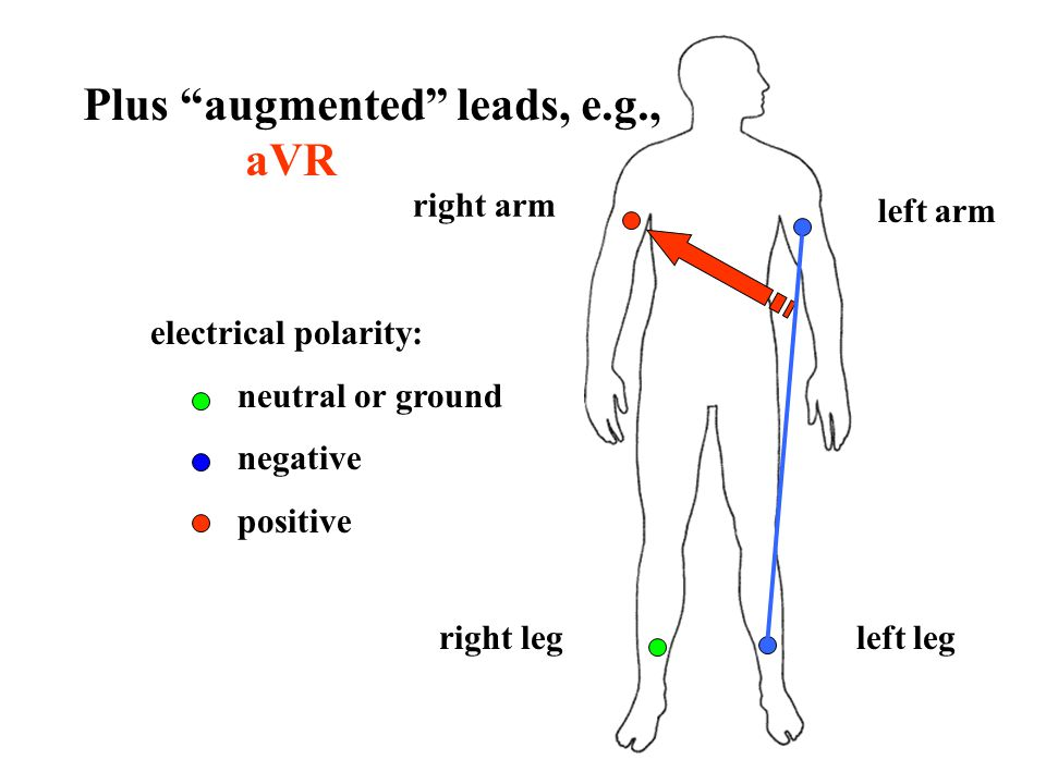 Plus augmented leads, e.g., aVR