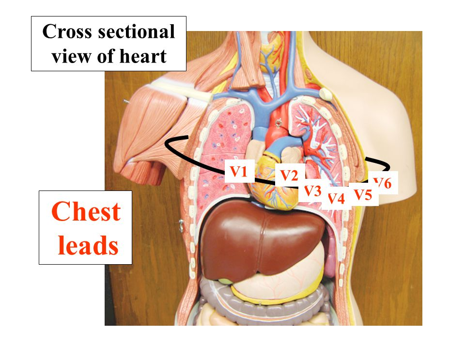Cross sectional view of heart