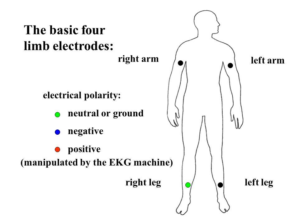 The basic four limb electrodes:
