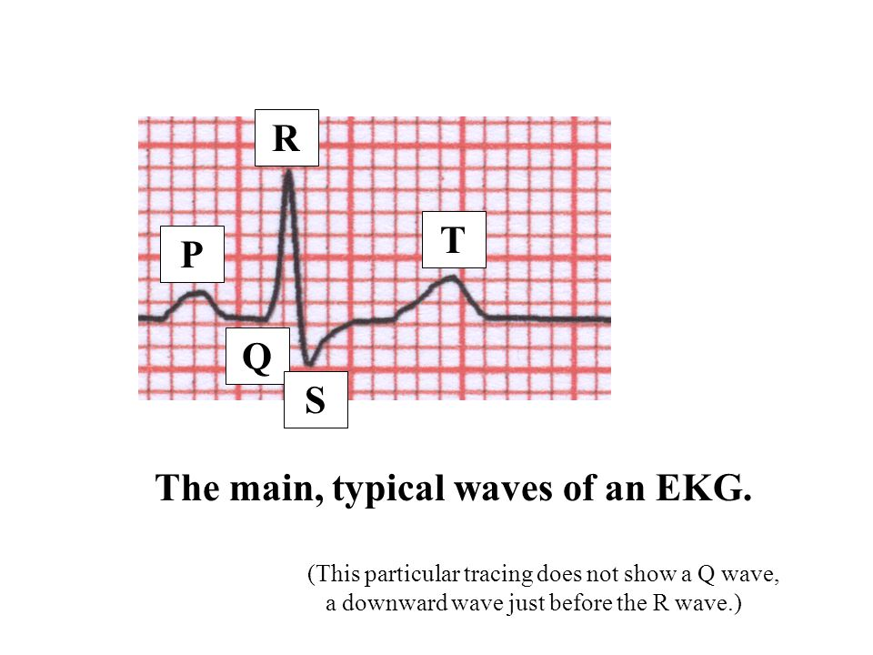 The main, typical waves of an EKG.