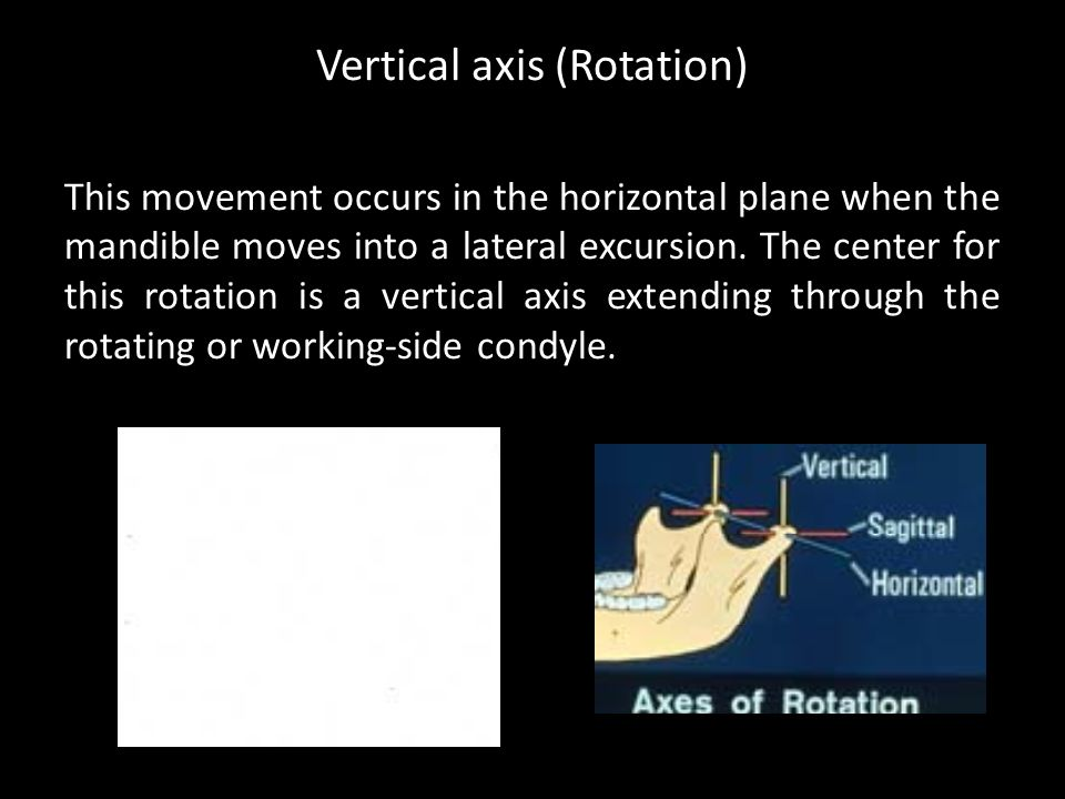 Vertical axis (Rotation)