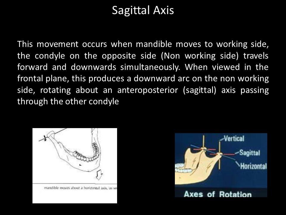 Sagittal Axis
