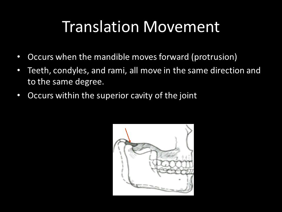 Translation Movement Occurs when the mandible moves forward (protrusion)