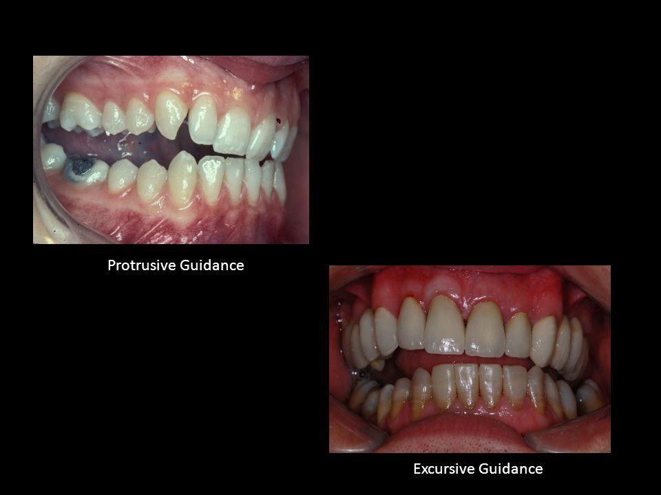 Protrusive Guidance Excursive Guidance
