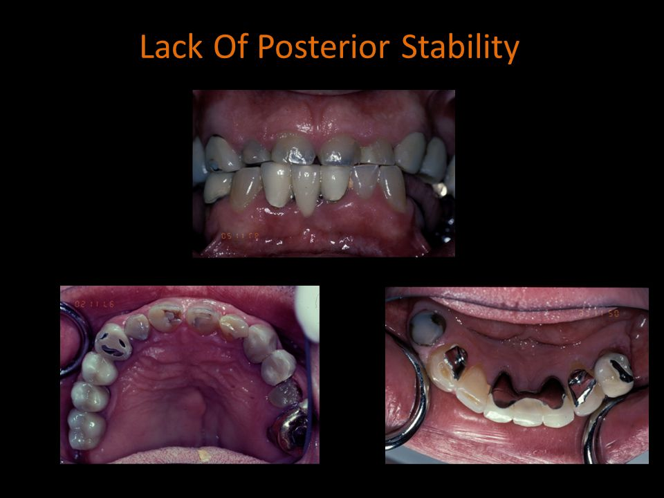 Lack Of Posterior Stability
