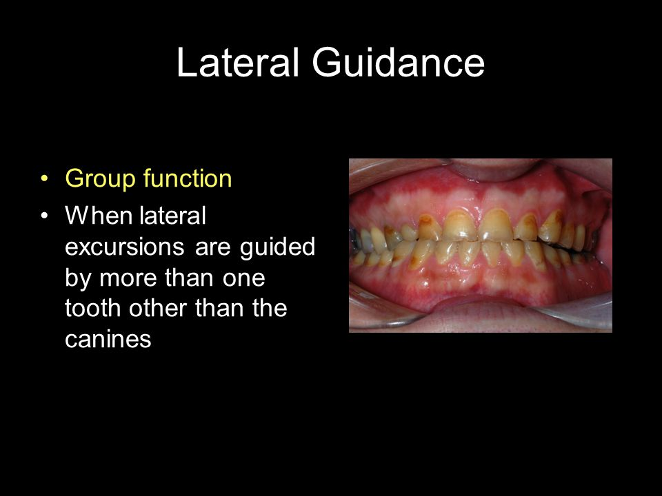 Lateral Guidance Group function