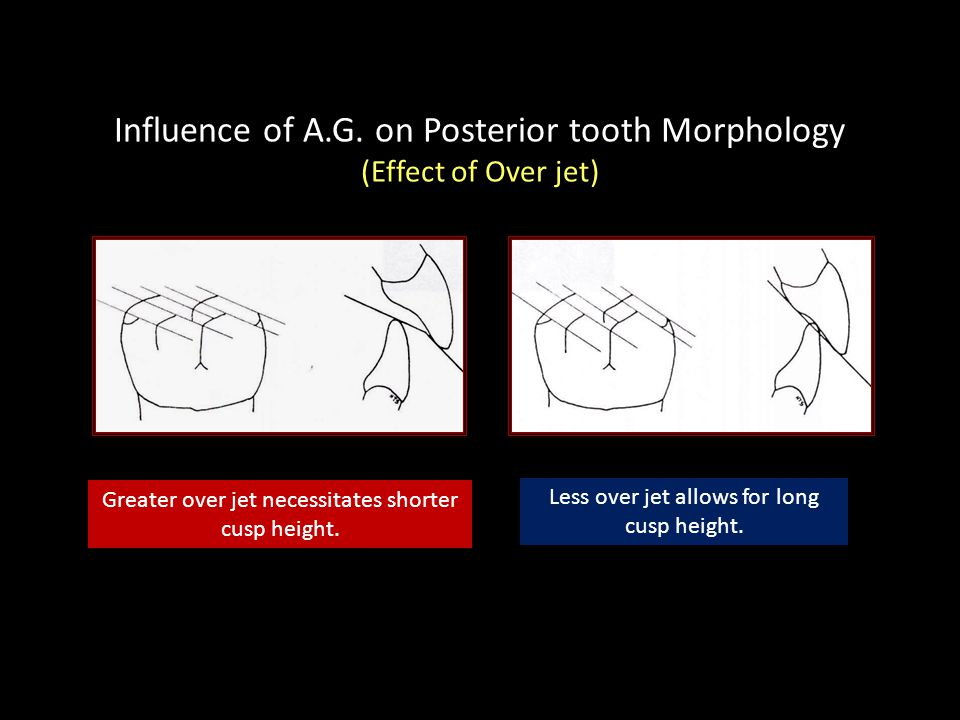 Influence of A.G. on Posterior tooth Morphology (Effect of Over jet)