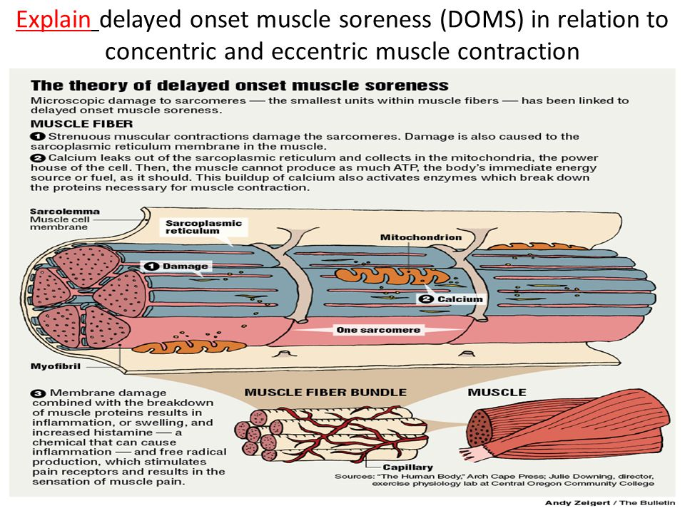 Explain delayed onset muscle soreness (DOMS) in relation to concentric and eccentric muscle contraction