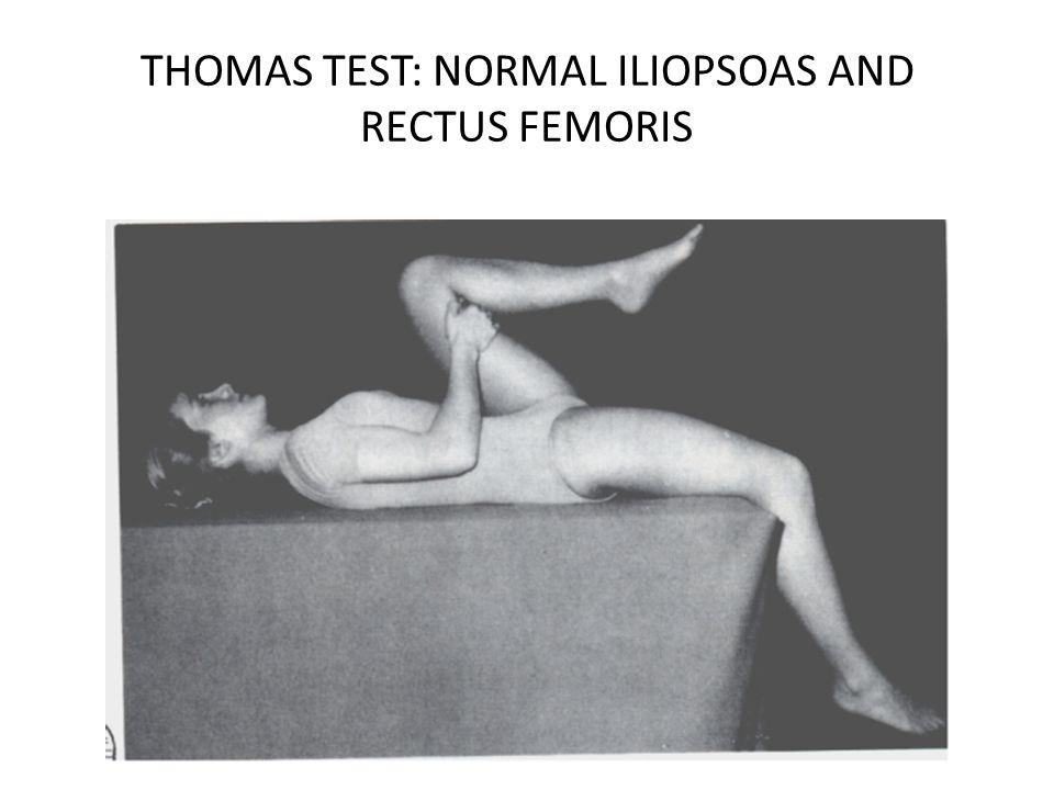 THOMAS TEST: NORMAL ILIOPSOAS AND RECTUS FEMORIS