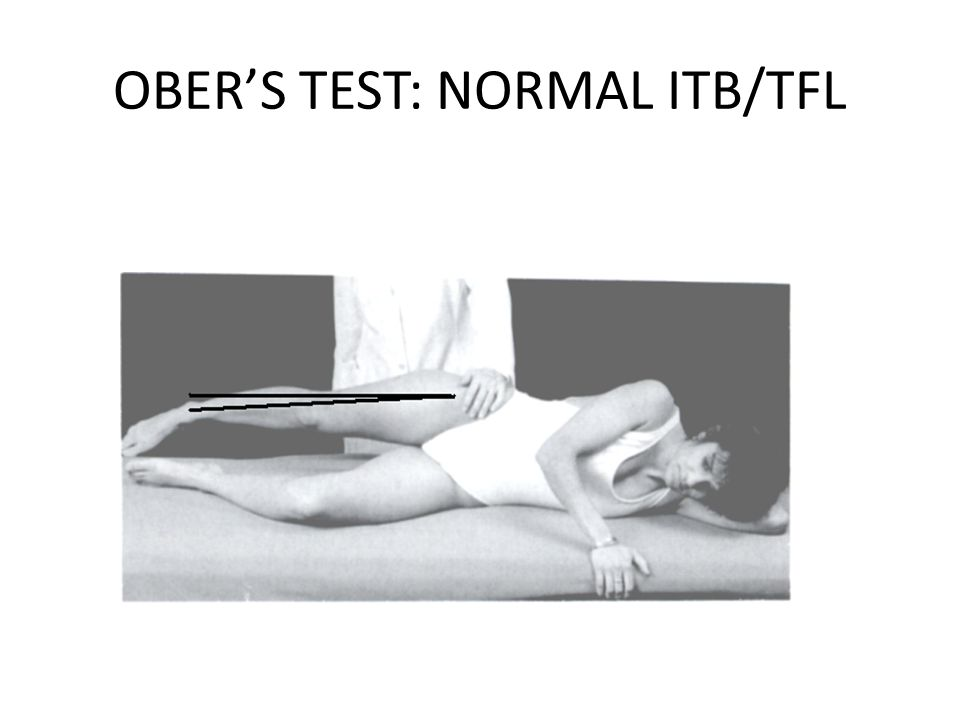 OBER'S TEST: NORMAL ITB/TFL