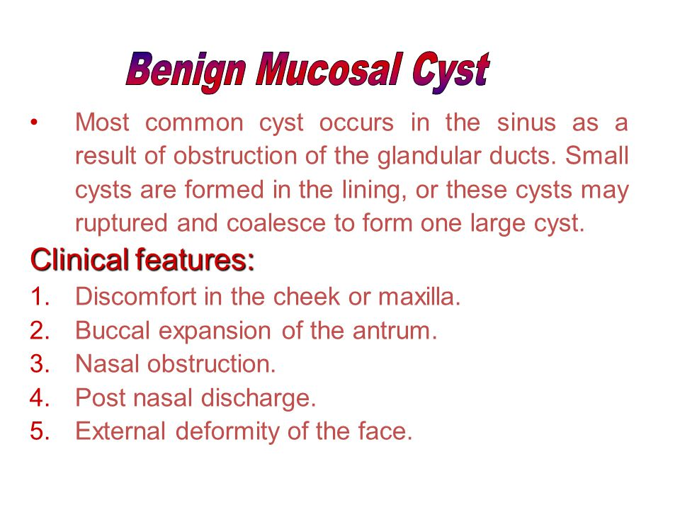 Benign Mucosal Cyst Clinical features: