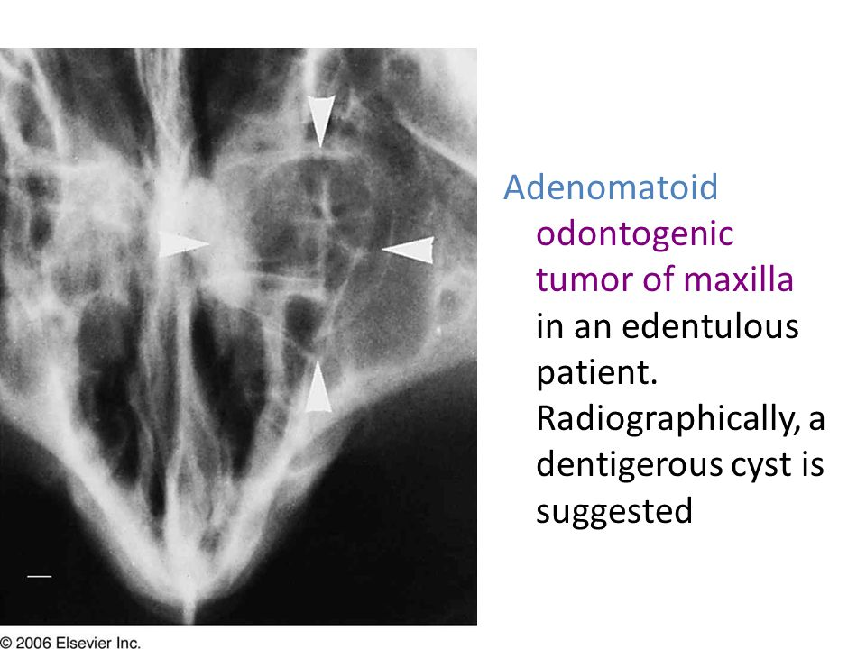 Adenomatoid odontogenic tumor of maxilla in an edentulous patient