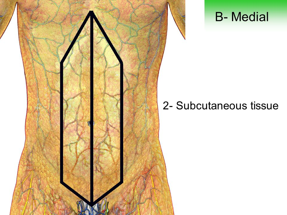 B- Medial 2- Subcutaneous tissue