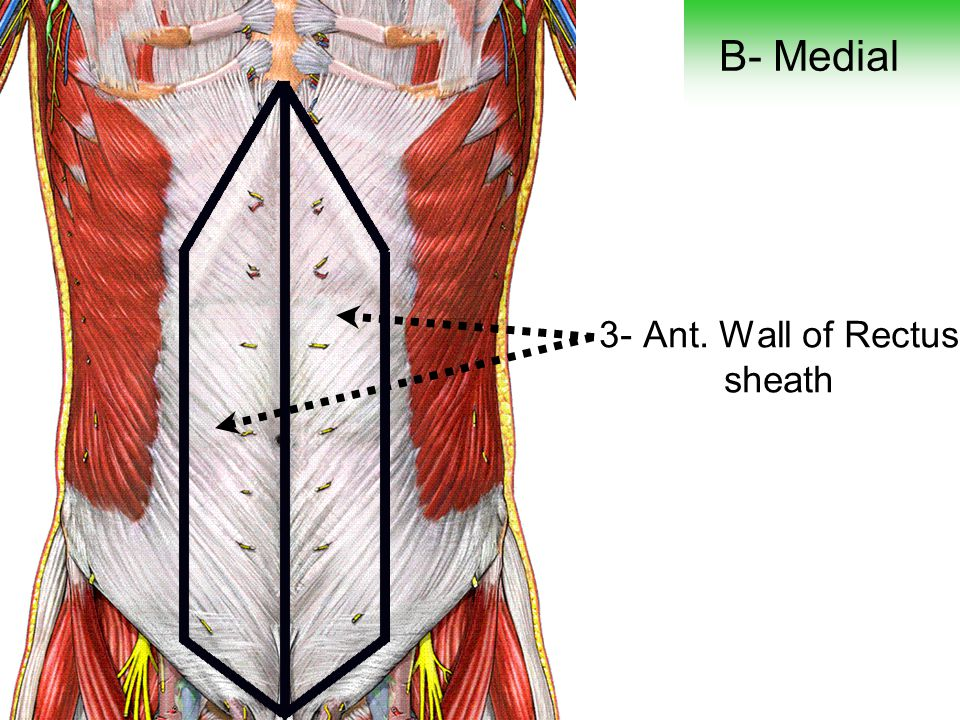 3- Ant. Wall of Rectus sheath