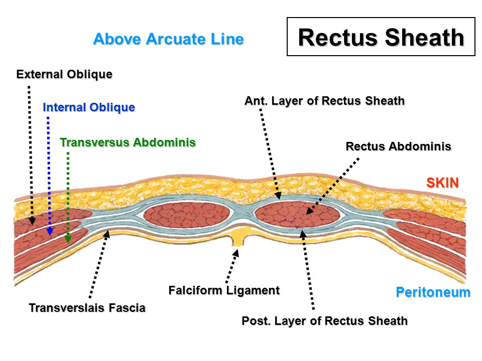 Rectus Sheath Above Arcuate Line SKIN Peritoneum External Oblique