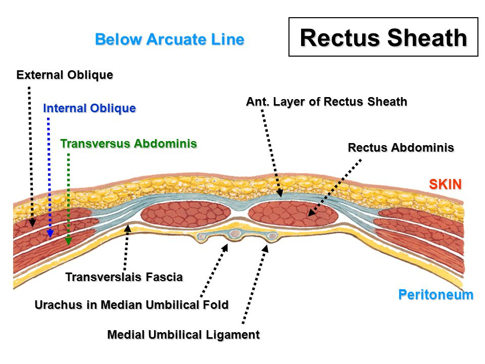 Rectus Sheath Below Arcuate Line SKIN Peritoneum External Oblique