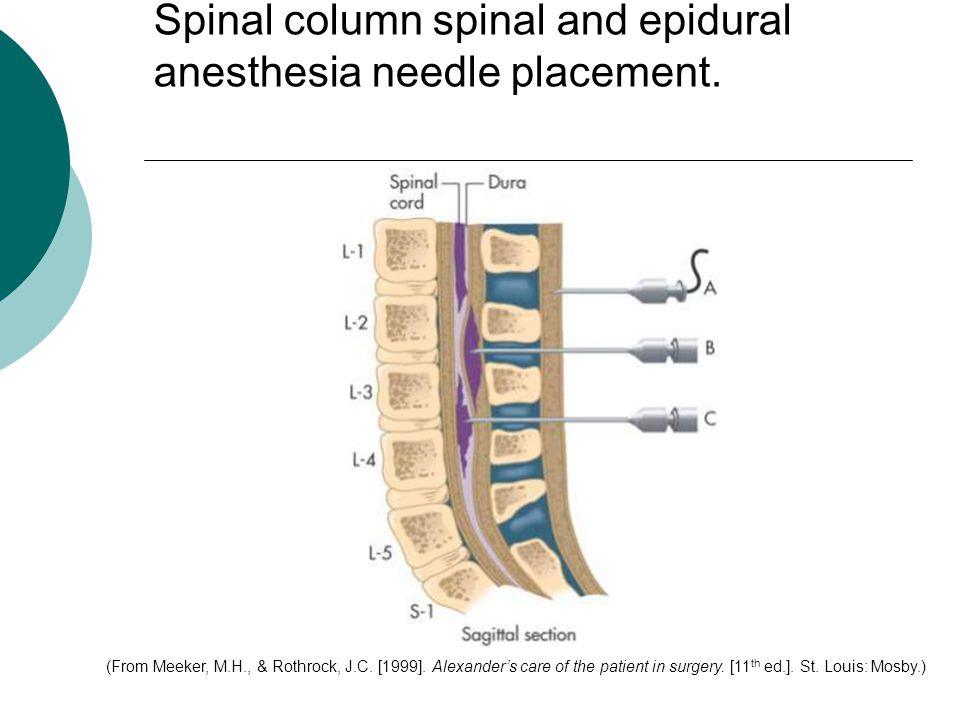 Spinal column spinal and epidural anesthesia needle placement.