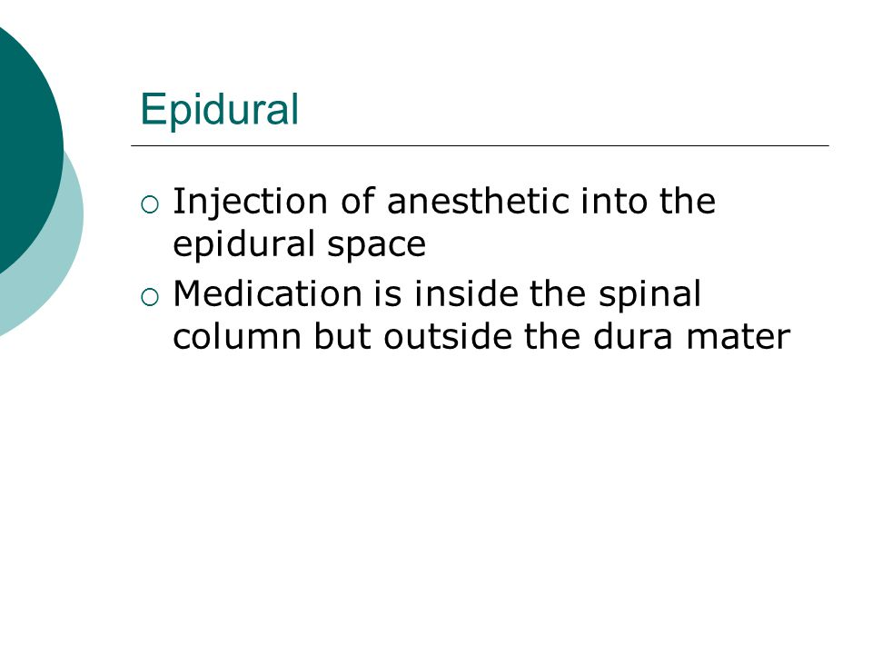 Epidural Injection of anesthetic into the epidural space
