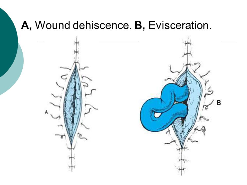 A, Wound dehiscence. B, Evisceration.