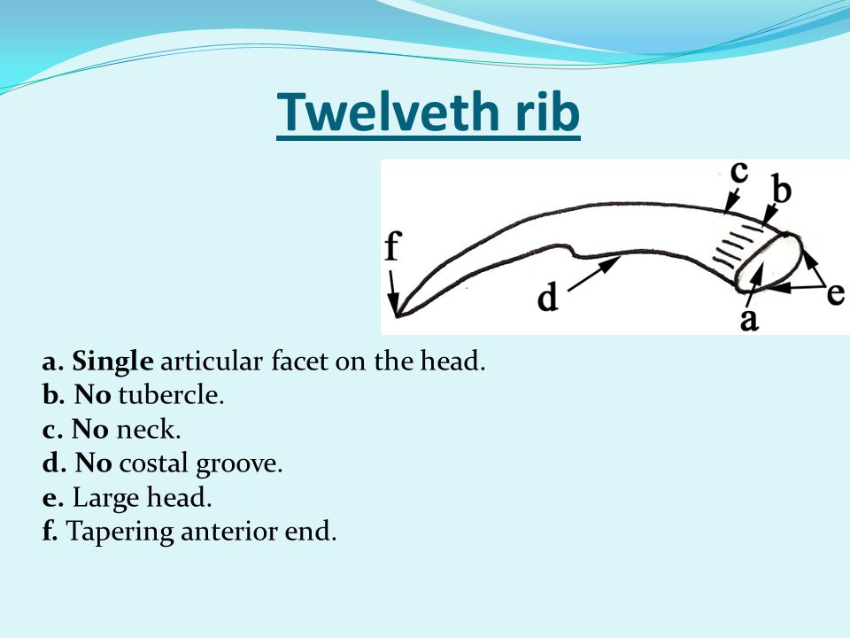 Twelveth rib a. Single articular facet on the head. b. No tubercle.