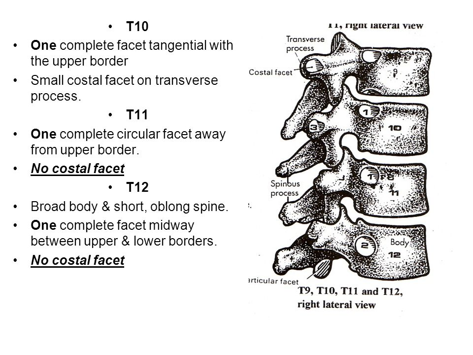 T10 One complete facet tangential with the upper border. Small costal facet on transverse process.