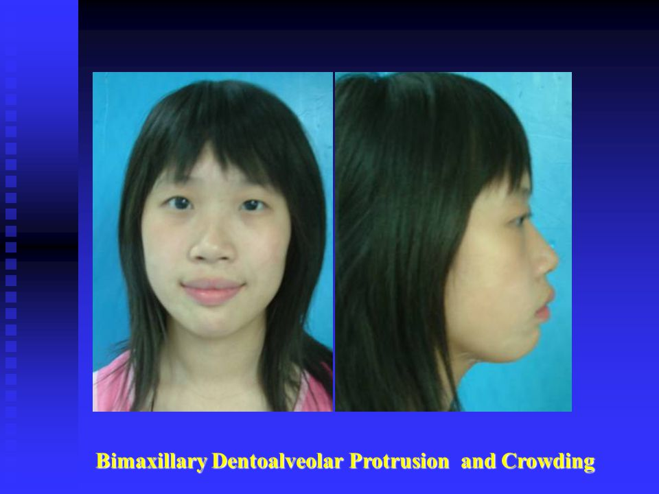 Bimaxillary Dentoalveolar Protrusion and Crowding