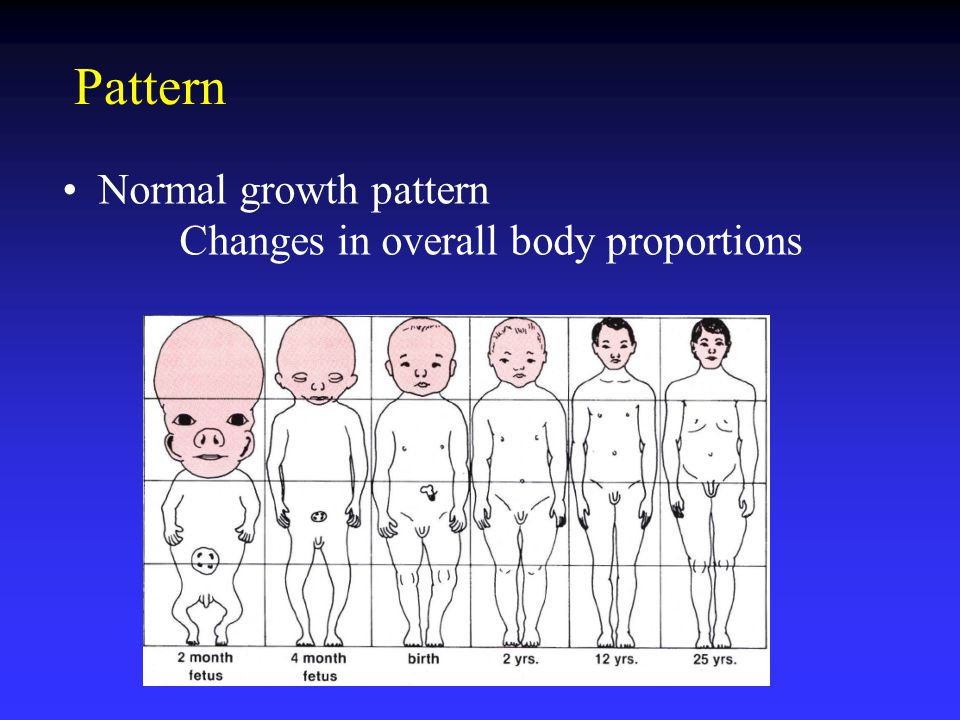 Pattern Normal growth pattern Changes in overall body proportions