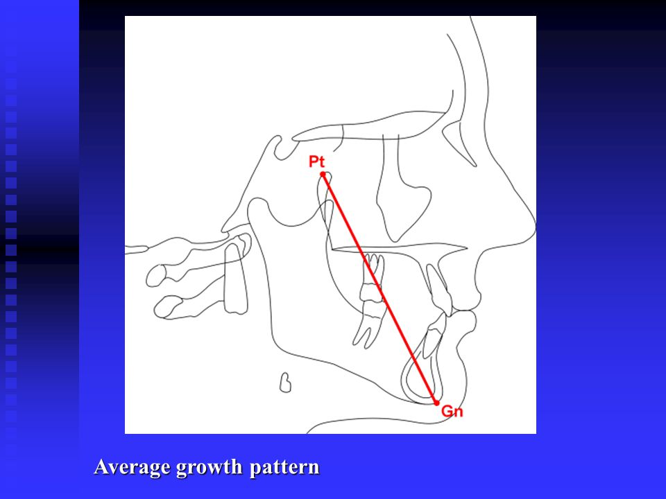 Average growth pattern