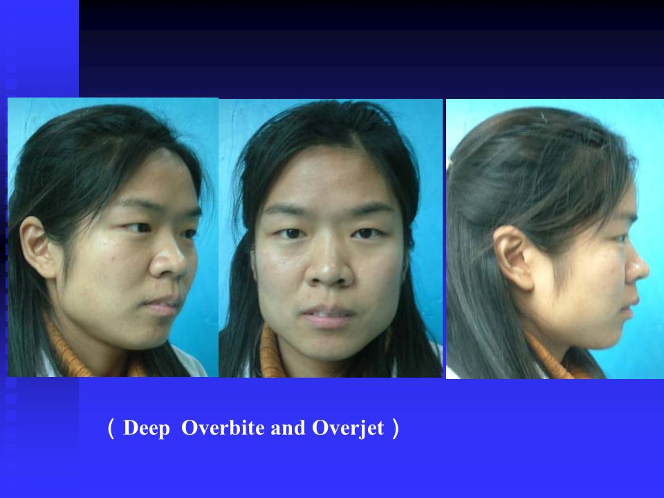 (Deep Overbite and Overjet)