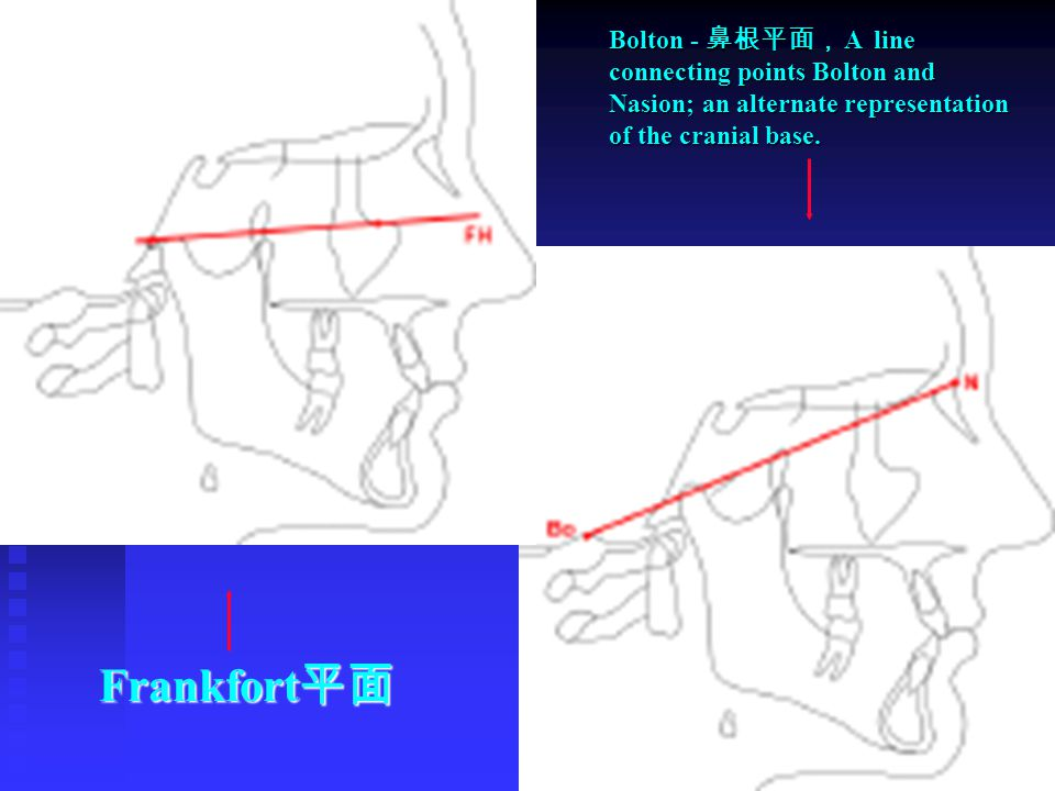 Bolton - 鼻根平面, A line connecting points Bolton and Nasion; an alternate representation of the cranial base.